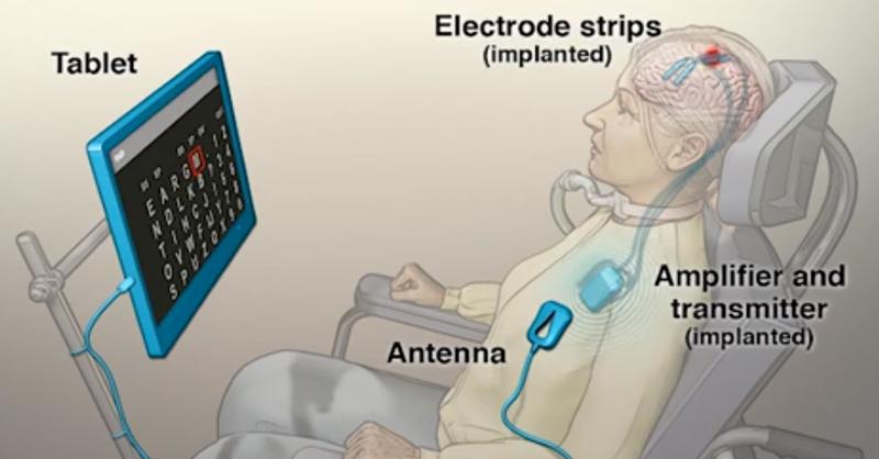 el-nuevo-tipo-de-implante-cerebral-permite-a-pacientes-inmovilizados-comunicarse-por-medio-de-sus-pensamientos